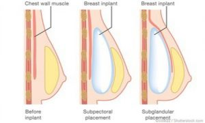 عمل جراحی سینه زنان در ابران