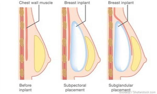 جراحی سینه زنان