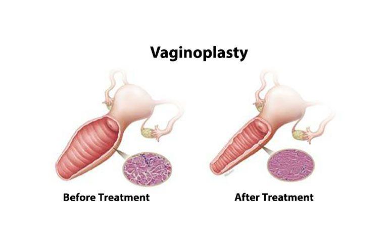 عمل زیبایی واژن-واژینوپلاستی