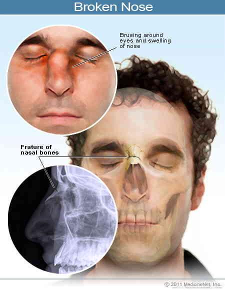 جراحی بینی شکسته