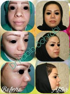 90 روز بعد از عمل بینی غضروفی