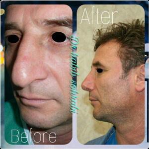 1 ماه بعد از جراحی بینی استخوانی