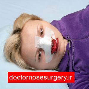 خونابه و ترشحات خونی بعد جراحی بینی