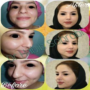 قبل و بعد از عمل بینی غضروفی