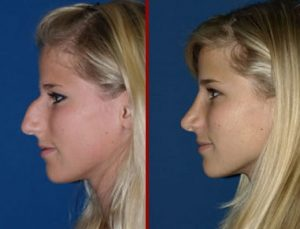 قبل و بعد جراحی دماغ استخوانی